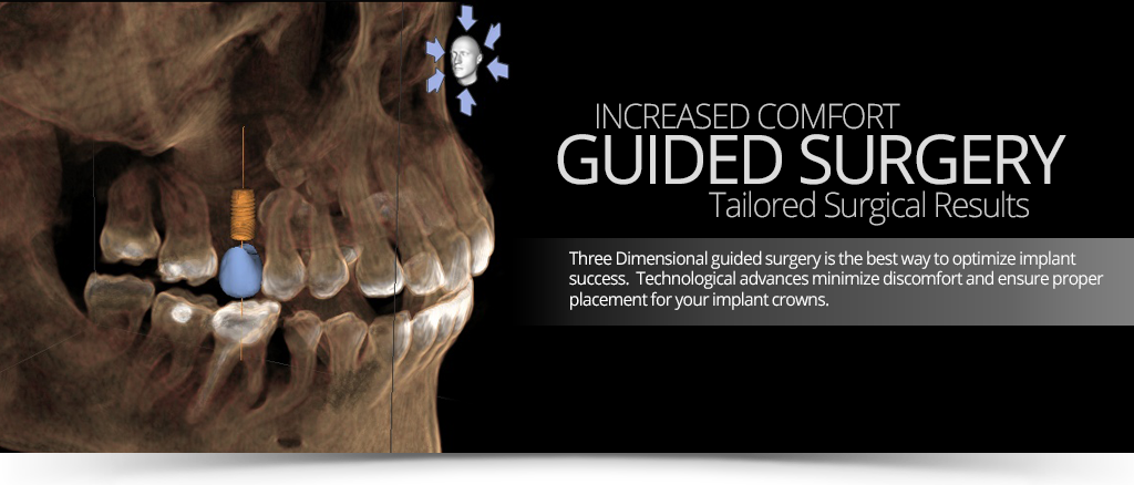 image-guided-implant