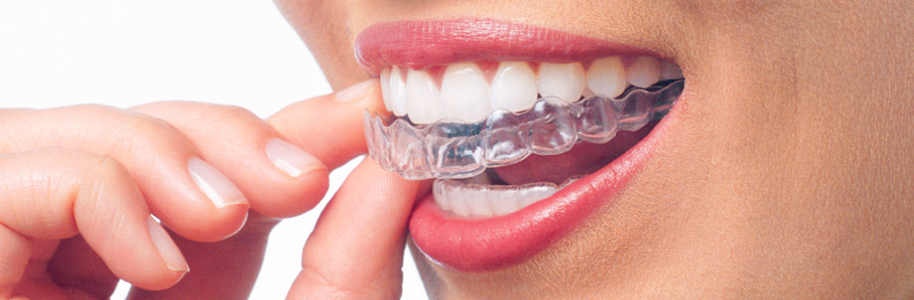 orthodontic-treatment-or-invisalign
