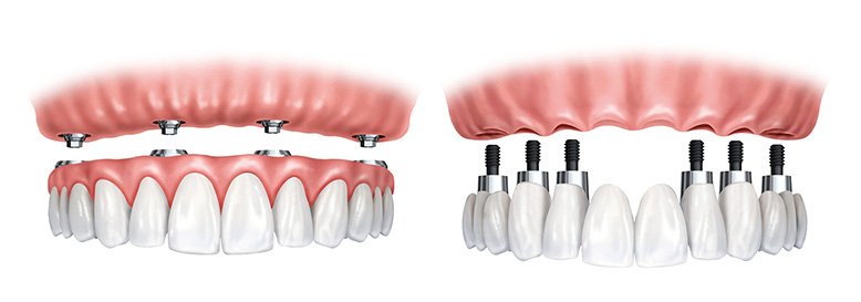 implant-retained-dentures-implant-retained-crowns