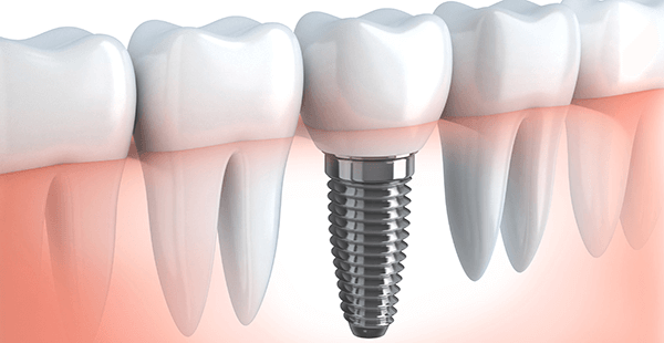 Dental Implants<br/>For Missing Teeth